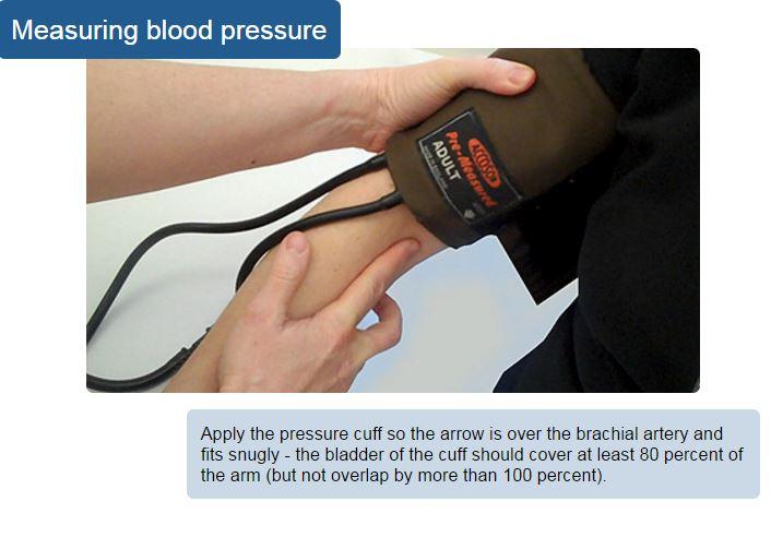 blood pressure rcn