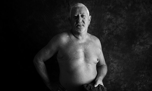Picture shows a man naked from the waist up, with a scar where one breast has been removed. People with cancer are allowing pictures of themselves displaying the scars from their treatment to be used in the fundraising Defiance project.