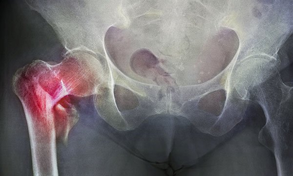 Coloured X-ray (front view) showing a hip fracture (at left) to the neck of the thigh bone Picture: Science Photo Library