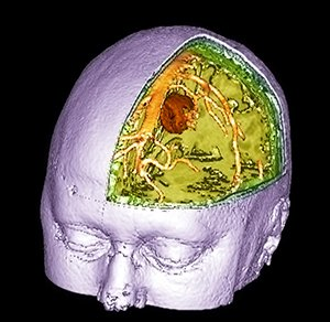 Brain_tumour,_3-D_MRI_scan-SPL