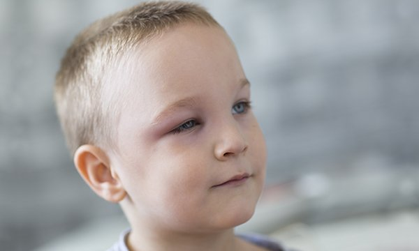 Child_Swollen_Eye