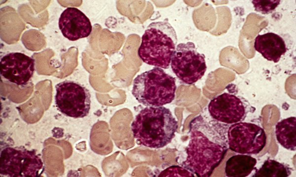 Chronic lymphocytic leukaemia