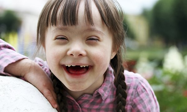 Down's syndrome child