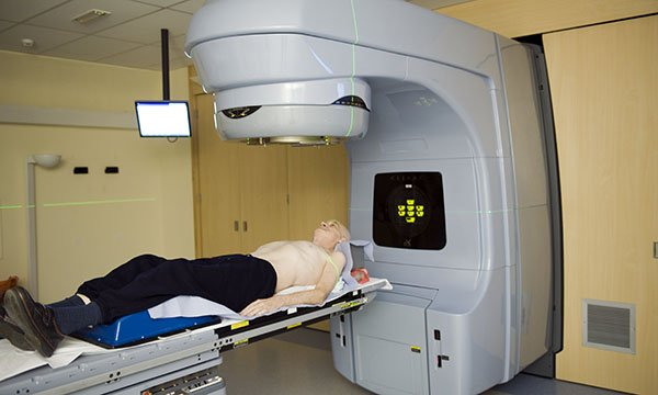 Lung cancer radiotherapy