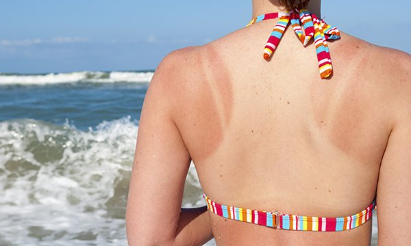 Sunburn can lead to skin cancers