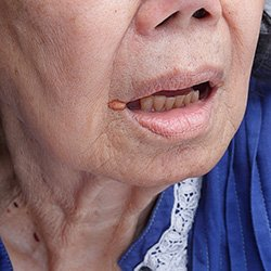 A woman with cheilitis Picture: iStock