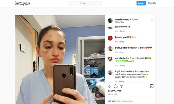 Nurse Alessia Bonari posted a picture of her bruises after wearing a protective mask for extended periods during Italy's COVID-19 epidemic