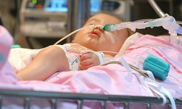Picture of a newborn receiving ventilation