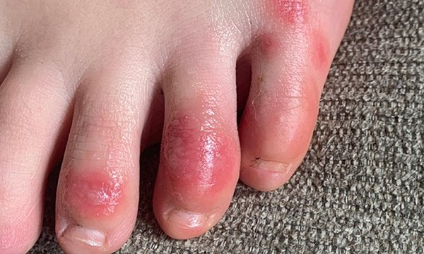 A picture of COVID toe, which has chilblain-like presentation