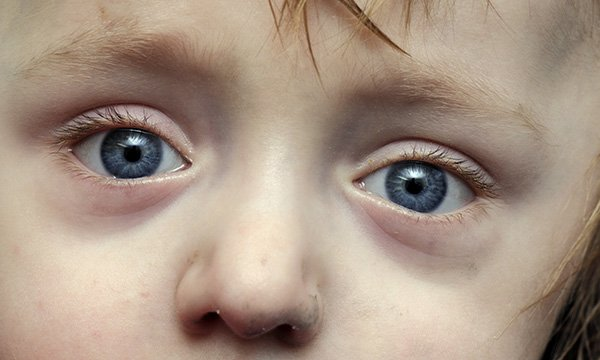 Sclera caused by brittle bone disease