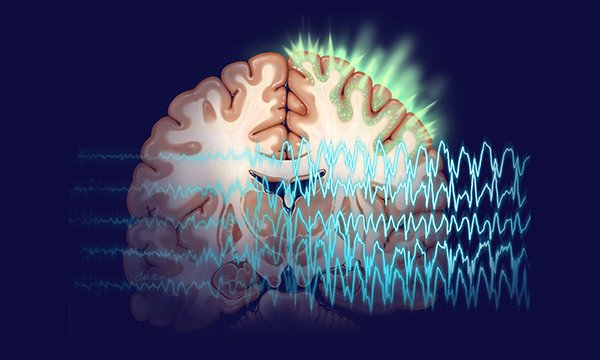 Image representing section of brain showing area of focal seizure, overlaid with EEG. New guidelines have been issued on training carers in first-line emergency treatment for epileptic seizures in the community.