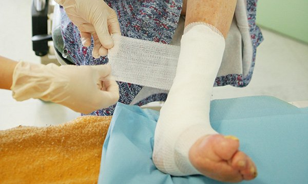 Bandaging as part of wound care for a leg ulcer
