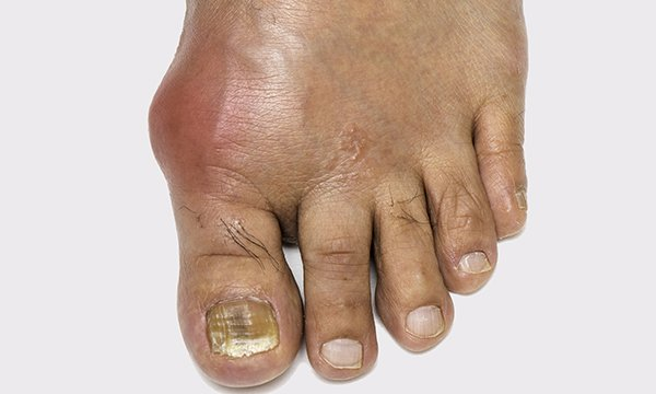 Picture shows a foot affected by gout. Most patients treated by nurses for gout were more satisfied, had greater knowledge, stuck to their medication and had fewer flares than those treated by a GP.