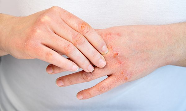pair of hands with signs of dermatitis