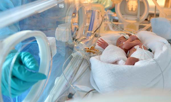 Picture of a newborn in a neonatal care unit