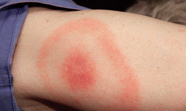 Lyme disease: recognition and management for emergency nurses