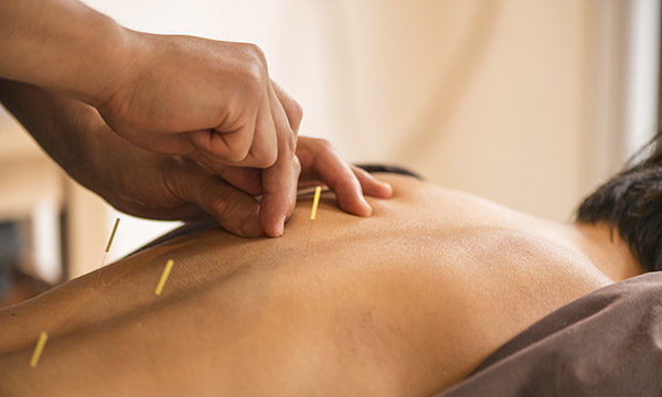 Use of acupuncture in the management of pain
